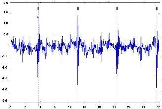 Géprezgés-spektrumelemzés - hibák felfedezése (5) - Fogismétlés időjele (forrás: DDC)