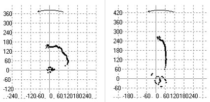 2009/09: Géphibák felismerése rezgésspektrumban - Megfeszített ill. normál tengely felemelkedése felfutás közben (forrás: Energopenta)