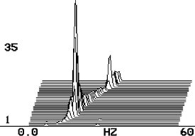 Géprezgés-spektrumelemzés - hibák felfedezése (3) - Rezonanciakeresés vízeses-spektrummal (forrás: CSi)